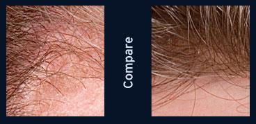 mens hair restoration vermont