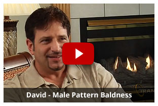 David - Male Pattern Baldness