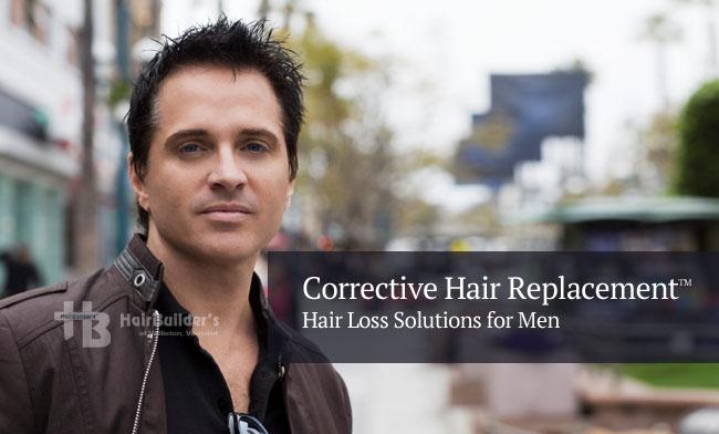 hair replacement for men. Burlington Vermont