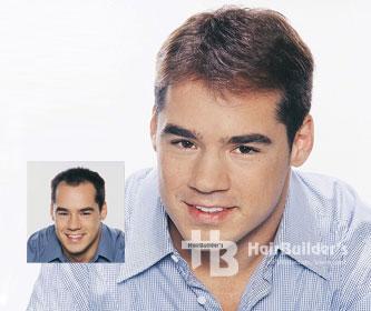 hairbuilders burlington hair replacement men