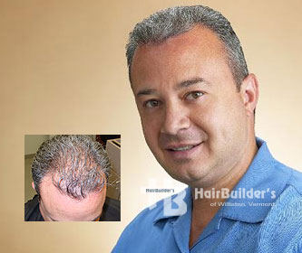 Laser hair therapy. Male alopecia. burlington vermont