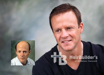 Mens hair loss solutions. Burlington Vermont