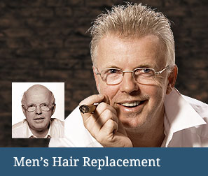 mens hair replacement burlington vt