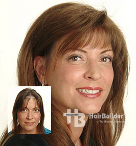 Hair replacement for female hair loss. Williston Vermont.