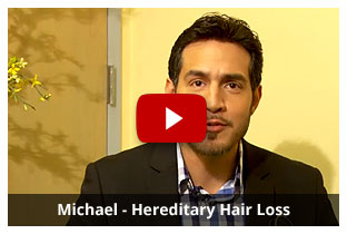 Michael - Hereditary Hair Loss