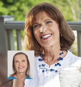 Reallusions hair replacement for Women. Burlington VT