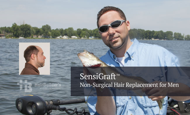 Non-surgical hair replacement men vermont