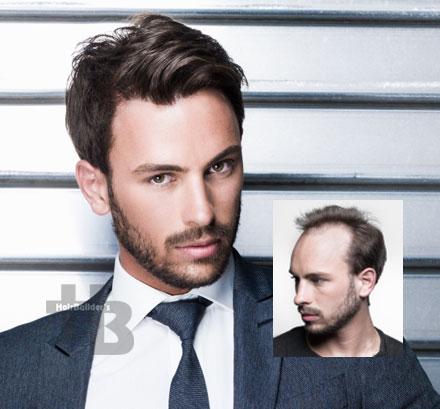 hair restoration men williston vermont