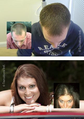 LLLT laser hair regrowth rejuvenation burlington vermont
