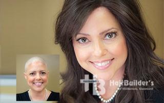 Alopecia Chemotherapy Wigs. Burlington Vermont