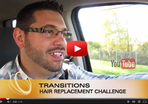 Non-Surgical Men's Hair Replacement Challenge