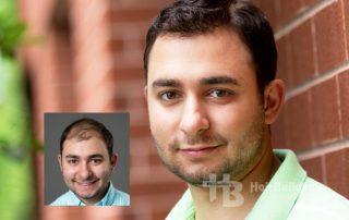 mens hair loss restoration burlington vermont