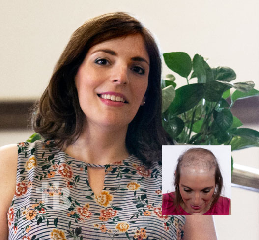 Womens hair loss replacement restoration burlington vermont