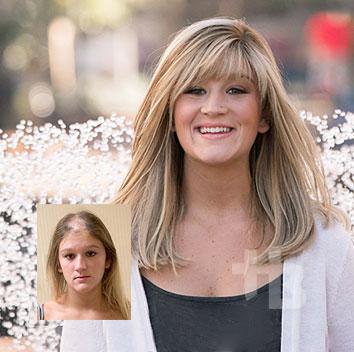 female hair loss replacement burlington vermont