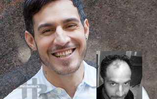 male hair loss replacement vermont
